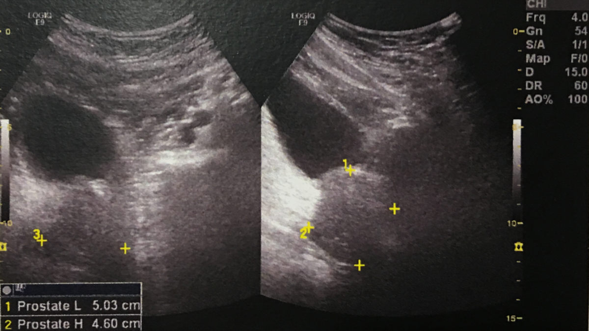 Ultrasound scan of Stilgherrian's prostate gland